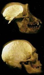 Мозг шимпанзе (вверху) и человека (внизу)
